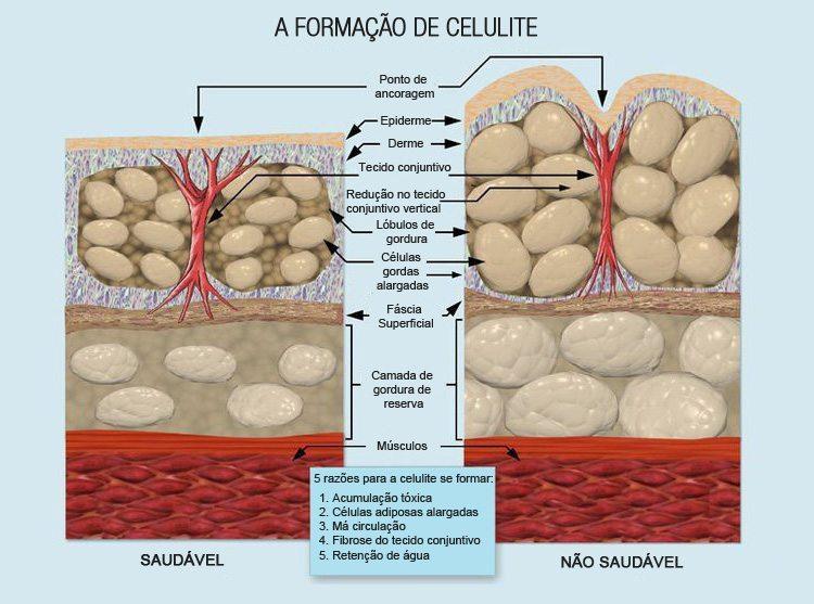 Como acabar com a celulite